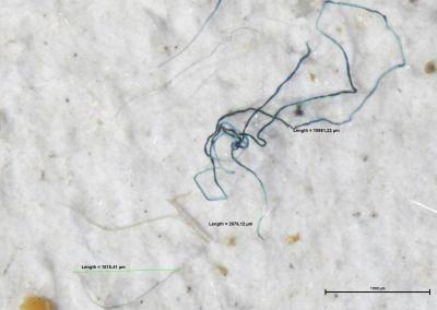 Fibres plastiques dans l'eau du port de Zeebrugge, filtrées à travers un tamis de 100 μm (photographiées au microscope). Image: IRSNB/C. De Schrijver
