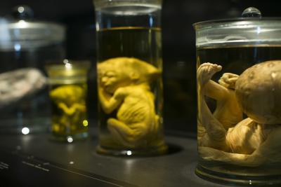 De collectie foetussen die al 100 jaar op formol bewaard worden (foto: Koen Broos)