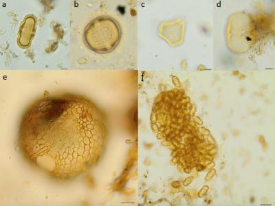 Vaak voorkomende pollen types in middeleeuwse en na-middeleeuwse beerputten: kervel (a), komkommerkruid (b), kruidnagel (c), longkruid (d), gomrotsroos (e), een cluster van pollen van kervel (f). (Foto: KBIN)