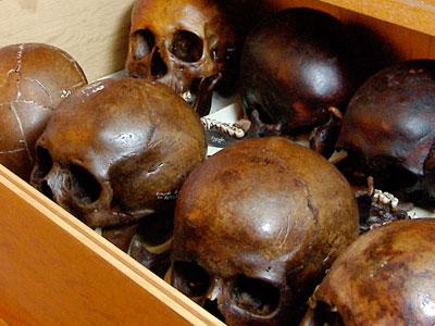 Menselijke schedels in de antropologische collectie