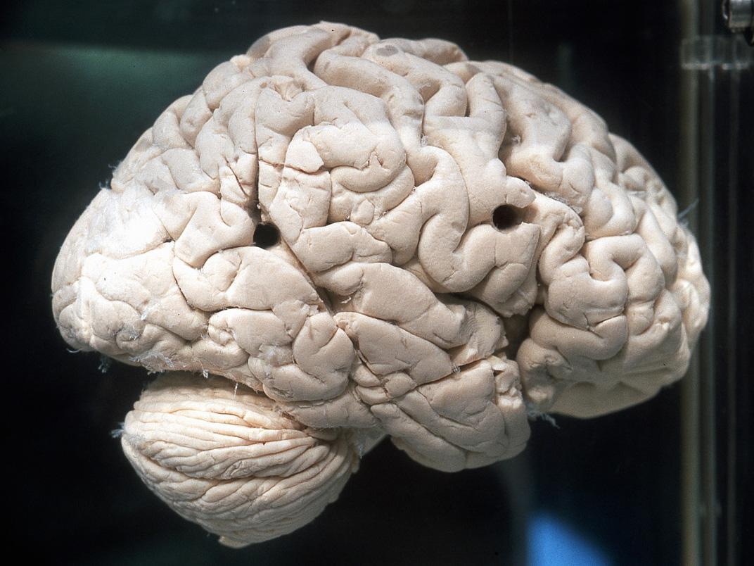 un cerveau humain (photo : Thierry Hubin, IRSNB)