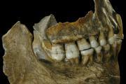 Mâchoires du Néandertalien Spy II. L'ADN contenu dans le tartre indique qu'il y avait notamment du rhinocéros laineux à son menu. La composition bactérienne de son tartre est également compatible avec celle de carnivores. (Photo : IRSNB)
